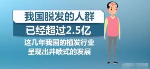 珠海新生植发:男性多被脱发问题